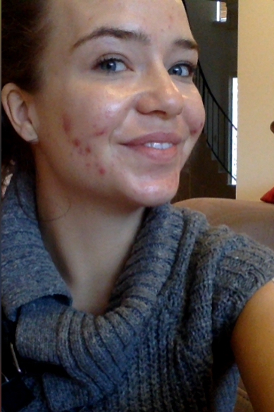acne before 1